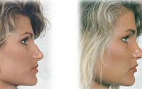 Charlotte Cosmetic Surgery - Bednar Edward J MD